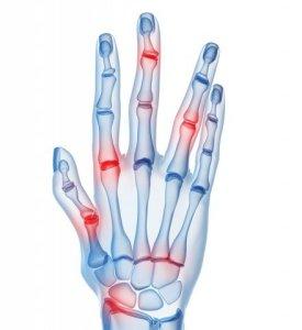 bigstock-skeletal-hands-arthritis-6903193-e1411783975666-440x480